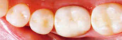 white_fillings